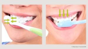 تنظيف الاسنان في الاحلام